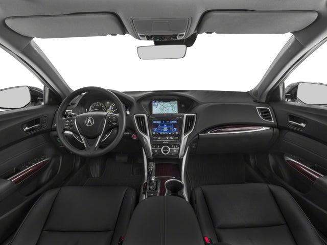 2015 Acura Tlx Tech In Minneapolis Mn Minneapolis Acura Tlx